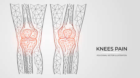 Polygonal vector illustration of pain, inflammation or injury in knees. Human legs bones anatomy. Medical orthopedic diseases templates