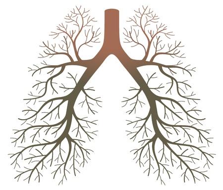 흡연자: 폐암 환자 일러스트