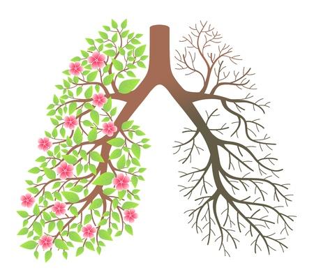 poumon humain: Effet poumons apr�s avoir fum� et la maladie Illustration