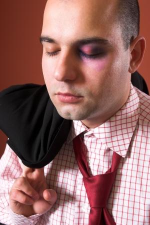 atacaba: Empresario atacado con un ojo negro  Foto de archivo
