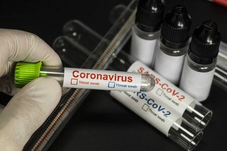 Stand for sample description. Tests for the presence of coronavirus in the body.  COVID -19 (SARS CoV-2)