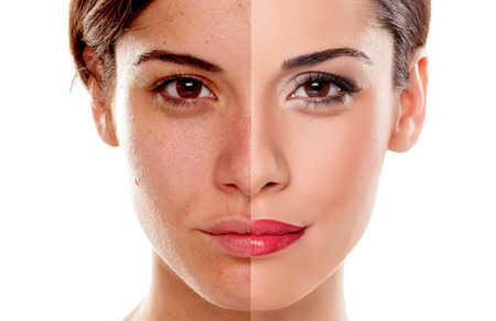 beautiful skin: Comparison portrait of a woman without and with makeup