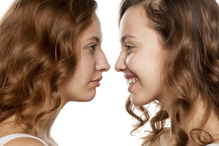 ritratto di una giovane donna, prima e dopo rinoplastica