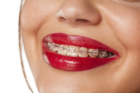 bracket: smiling female mouth with braces on her teeth