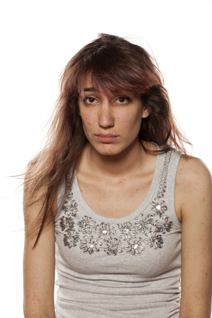 pimples: unhappy and sad girl with pimples posing on a white background