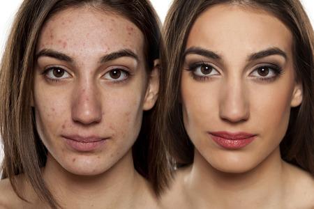 pessoas: Retrato de comparação de uma mulher com pele problemática sem e com maquiagem