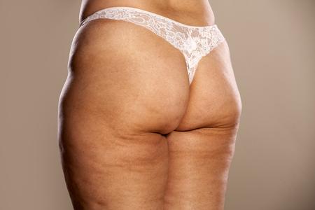 grosse fesse: fesses des femmes grasses avec des marques de cellulite et les vergetures Banque d'images