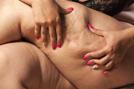 pinching: Very fat woman pinching her leg with her fingers Stock Photo