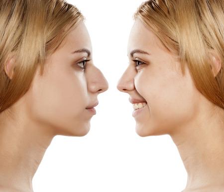 antes y después de la cirugía plástica de la nariz Foto de archivo