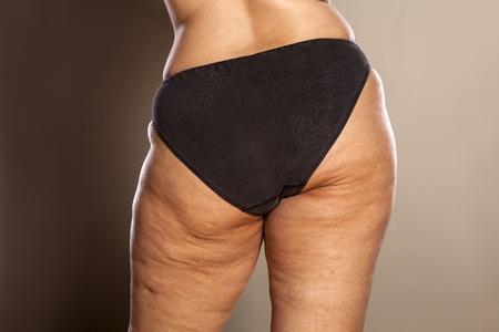 Fat kobiece pośladki z cellulitem i rozstępami w czarne majtki