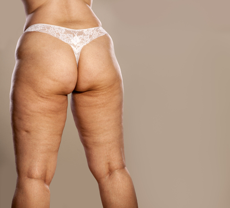 Fat female buttocks with cellulite and stretch marks in white thong Banco de Imagens