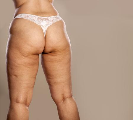 grosse fesse: fesses des femmes Fat avec la cellulite et les vergetures en string blanc