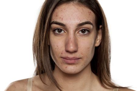 문제가있는 피부를 가진 아름다운 젊은 여성
