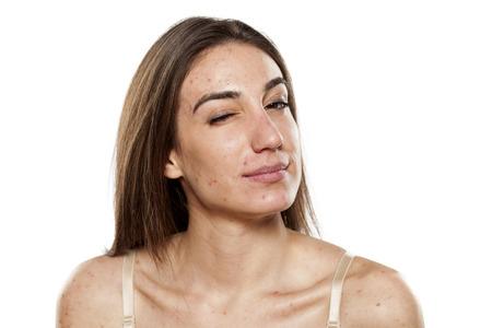 sceptisch jonge vrouwen met problematische huid Stockfoto