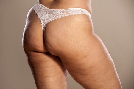 Fat female buttocks with cellulite and stretch marks in white thong Stock Photo