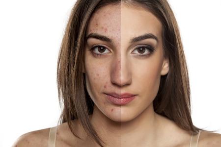 Comparación retrato de una mujer con la piel problemática con y sin maquillaje Foto de archivo