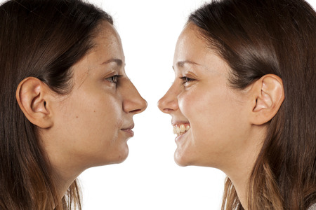 comparative portrait of the same woman, before and after rhinoplasty Standard-Bild