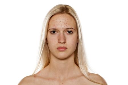 Jong blond met puistjes op haar voorhoofd
