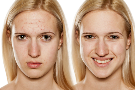 Comparative portrait of female face, before and after cosmetic treatment Foto de archivo