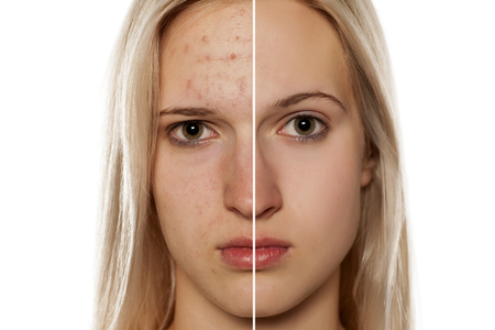 Comparative portrait of female face, before and after cosmetic treatment Standard-Bild