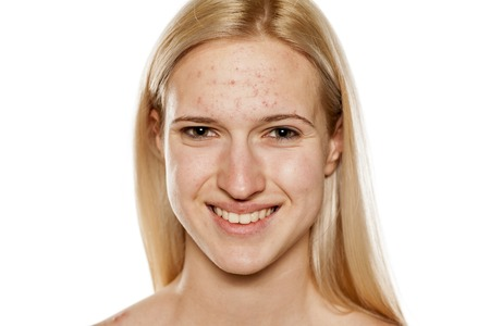 Young smiling blond with pimples on her forehead Stock Photo