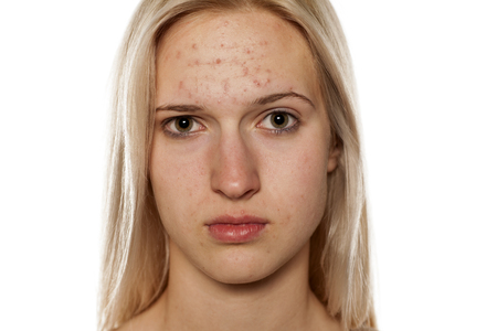 Young blonde with pimples on her forehead