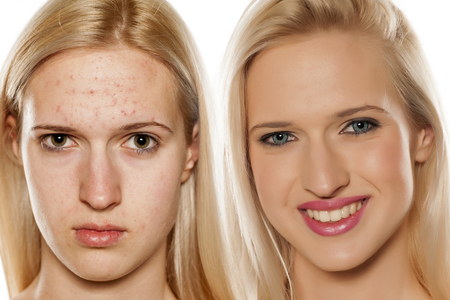 Comparative portrait of female face, before and after cosmetic treatment Stock Photo