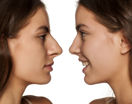 comparative portrait of the same woman, before and after rhinoplasty Stock Photo