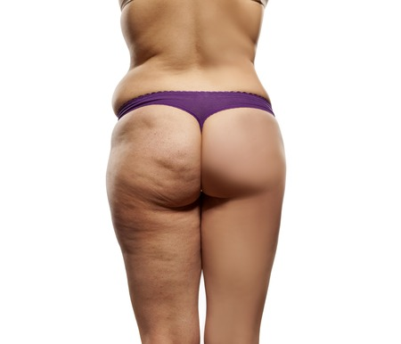 comparing female buttocks, before and after liposuction
