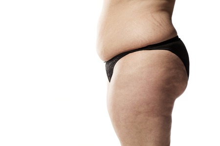stretch marks and cellulite of a fat woman in black panties on a white background Stock Photo