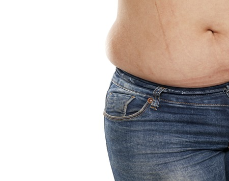 stretch marks on the stomach of a fat woman in jeans on a white background Stock Photo