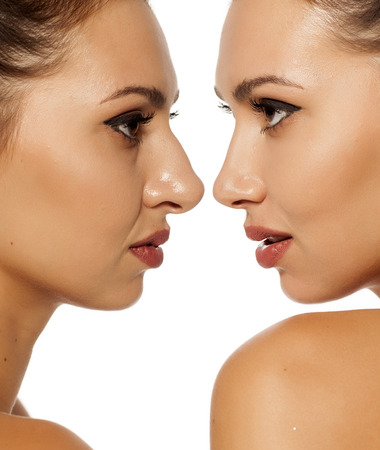 Comparison of female nose before and after cosmetic surgery Stock fotó