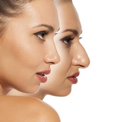 Comparison of female nose before and after cosmetic surgery Stockfoto