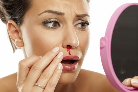 a young afraid woman with a bloody nose Stock Photo