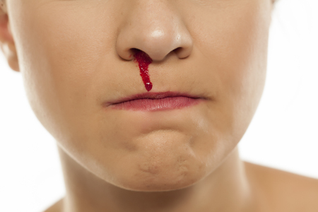 een jonge vrouw met een bloedneus