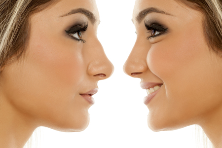 Comparison of female nose, before and after plastic surgery Фото со стока