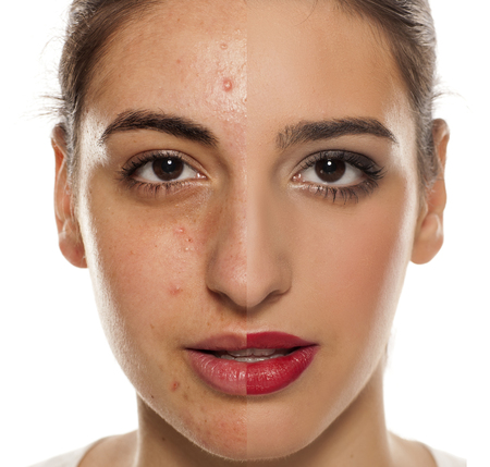 Comparision of before anf after mkeup on young woman with a problematic skin on her face Stock Photo