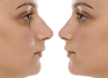 Nose plastic surgery before, and after