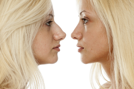 comparison of nose surgery, befora and after 스톡 콘텐츠