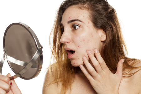 young shocked woman with problematic skin and without makeup looking her self in the mirror on a white background