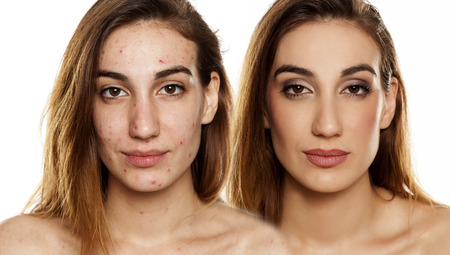 comparition portrait of same woman before and after cosmetic treatment amd makeup on white background Stock Photo