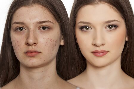 Vergleichsportrait von Teenager-Mädchen mit problematischer Haut, vor und nach Hautmerkmal auf weißem Hintergrund Standard-Bild