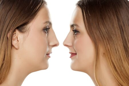 portrait of a young woman, before and after rhinoplasty Stock fotó
