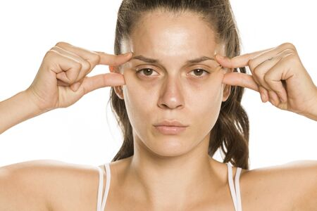 Young worried woman pinching her eye wrinkles on white background Stok Fotoğraf