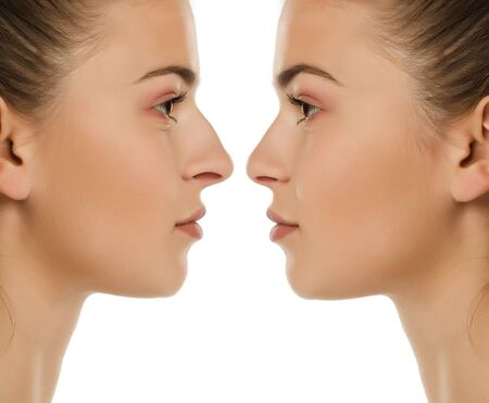 Comparison portrait of same woman before and after nose surgery on white background Stock fotó