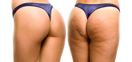 Female buttocks before and after on white background Stok Fotoğraf