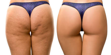 cellulite and strechmarks on woman's buttocks before and after treatment on white background Stok Fotoğraf