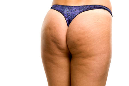 Female buttocks with cellulite and stretch marks on white background