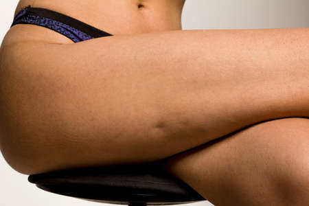 cellulite on woman's leg on white background