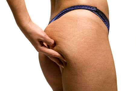Woman pinching stretch marks and cellulite on her ass on white background Standard-Bild